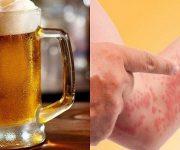 Dị ứng bia: Nguyên nhân, dấu hiệu và cách trị
