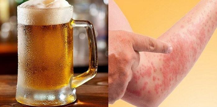 Bia gây dị ứng