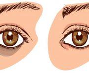 Tại sao mắt bị thâm quầng? cách chữa nhanh nhất