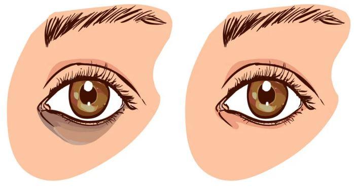 Tại sao mắt bị thâm quầng