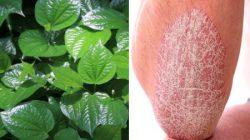 3 Cách chữa vẩy nến bằng lá lốt tại nhà có hiệu quả cao nhất